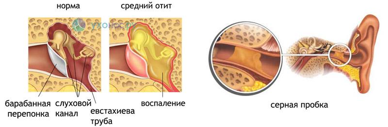 Как уши вода стреляют будто pylori helicobacter к анализ at на крови