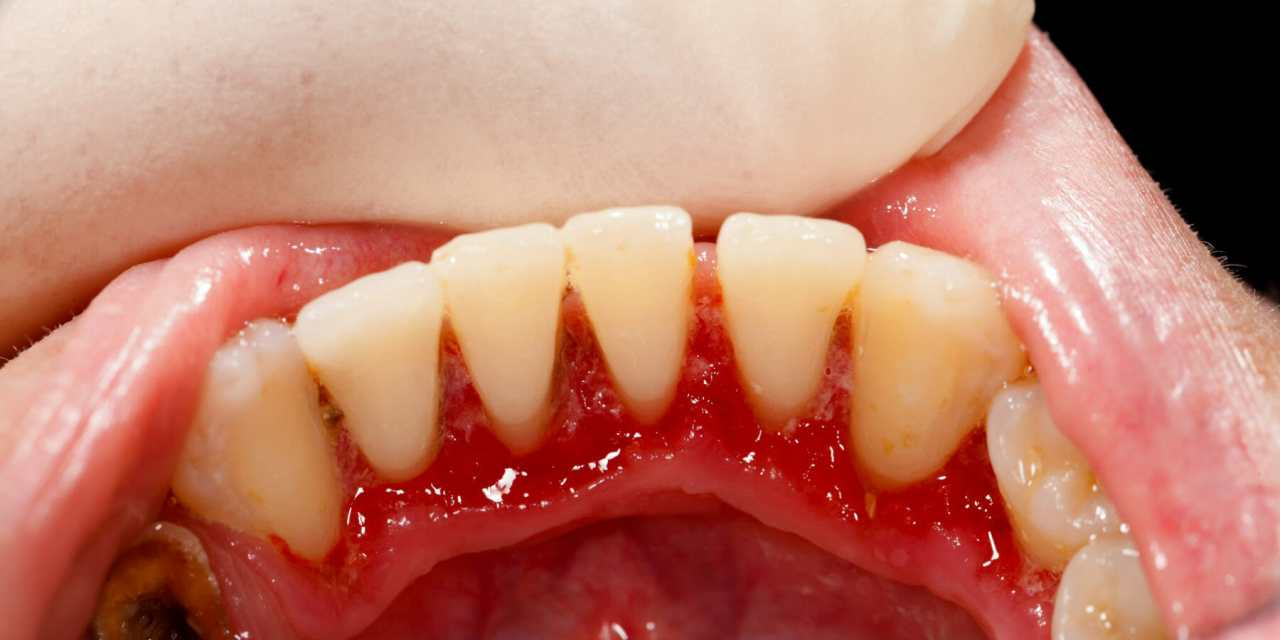 Gum Disease is Root of 5 Serious Health Issues