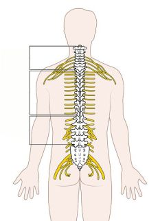 causation in clinical negligence spinal diagram