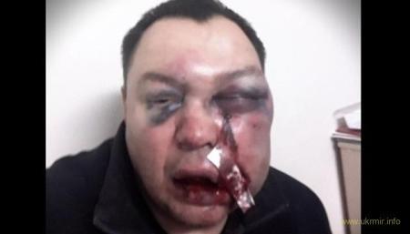Российского депутата избили железной трубой