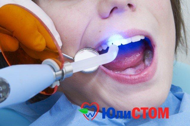 Цена зубов (лечение)