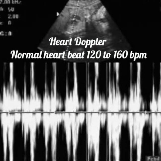 ultrasound image of the fetal heart doppler