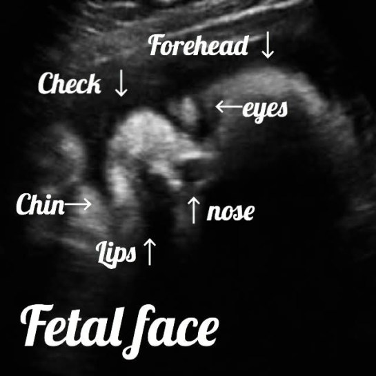 ultrasound image at 32 weeks, showing the normla fetal face in 2d