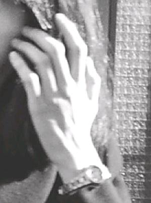 愛子さまのやせ細った手