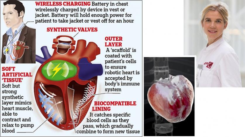 قلب آلي «رقيق» قد يضع حداً لعمليات زراعة القلب بحلول عام 2028