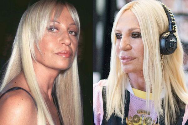 Донателла Версаче до и после пластики лица (Фото)   Умница ...