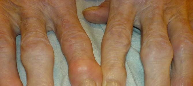 Полный обзор узелкового периартериита симптомы формы болезни лечение