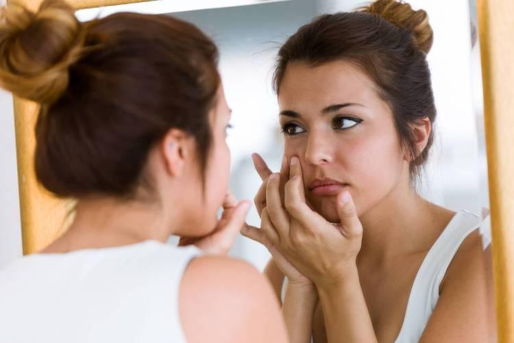 acide salicylique pour lutter contre l'acné