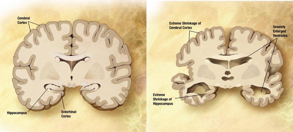 Мозг пожилого человека в норме (слева) и при патологии, вызванной болезнью Альцгеймера (справа). Википедия.