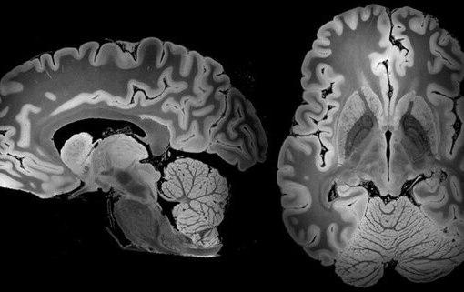 Этот МРТ-снимок мозга делали на протяжении 100 часов 8