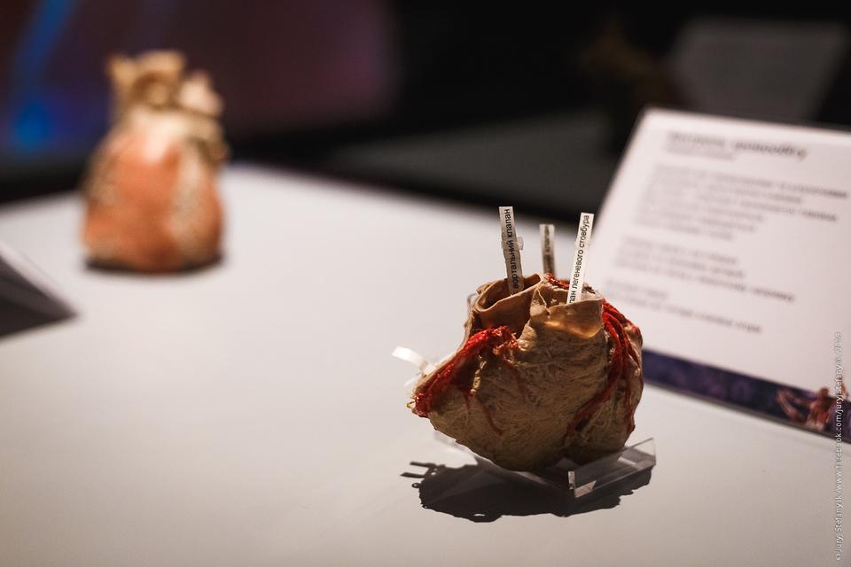Выставка пластинированных человеческих тел в Киеве 9