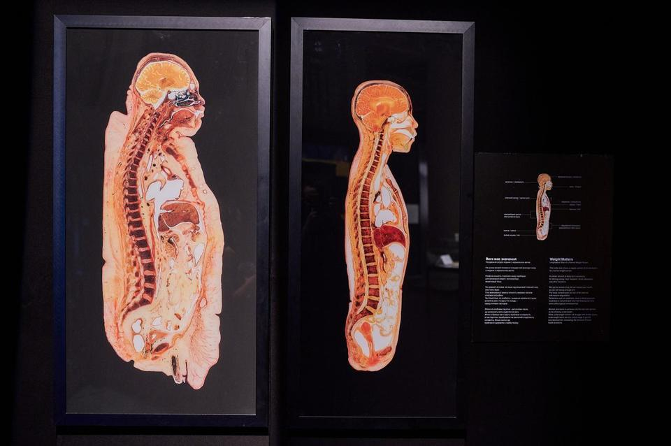 Выставка пластинированных человеческих тел в Киеве 12