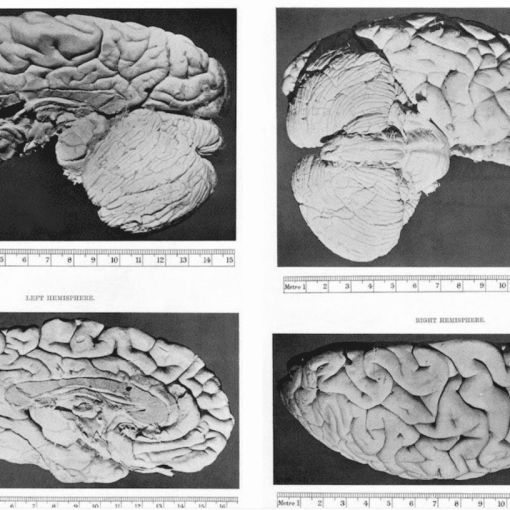 Описание мозга мистера Чарльза Бэббиджа (1909) 9