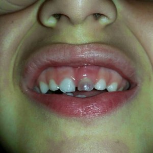 diente negro