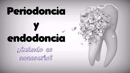 periodoncia y endodoncia