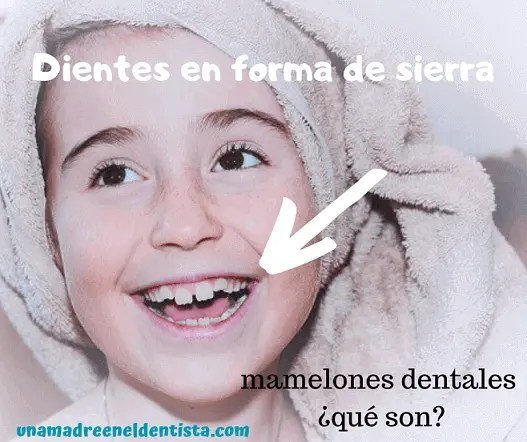 dientes en forma de sierra