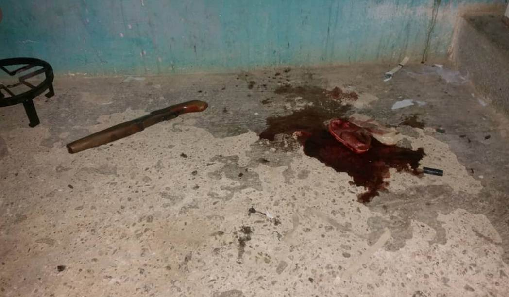 En supuesto enfrentamiento murió reo fugado del retén policial de Punto Fijo