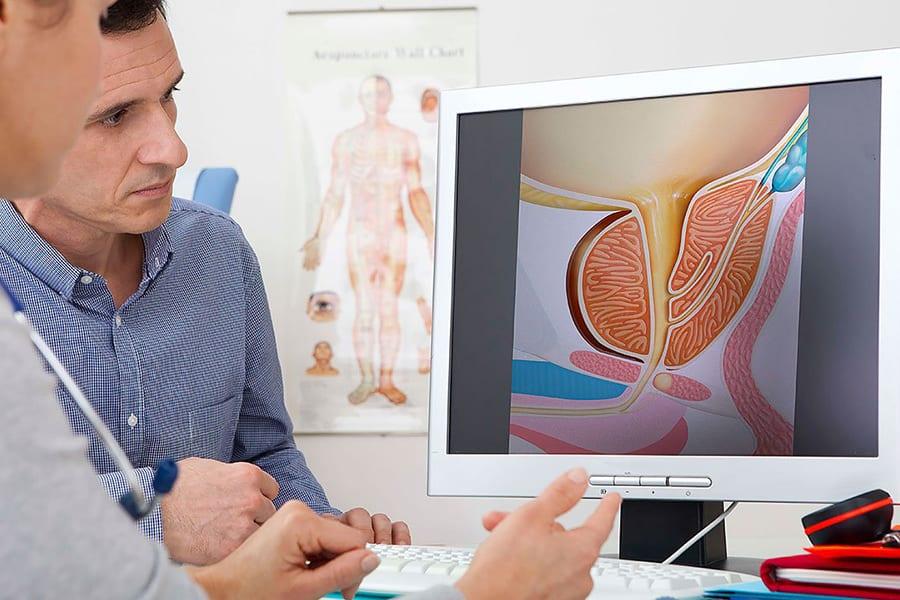 Комплексная диагностика простатита и аденомы простаты