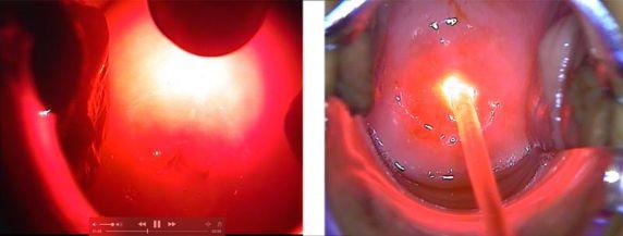 Фотодинамическое лечение дисплазии шейки матки