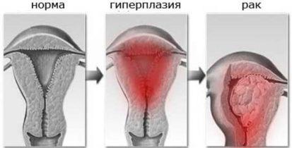 Гиперплазия и рак