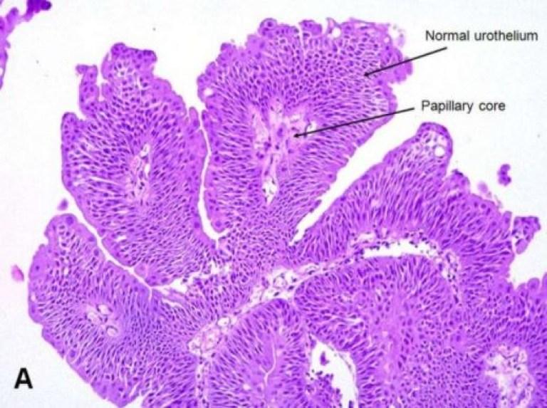 Инвертированная папиллома мочевого пузыря - виды, характеристика, патофизиология, гистология