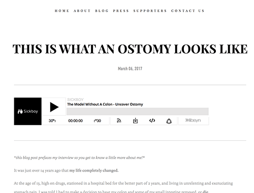 Uncover-Ostomy_This-is-what-an-ostomy-looks-like_SickBoyPodcast_4-6-2017