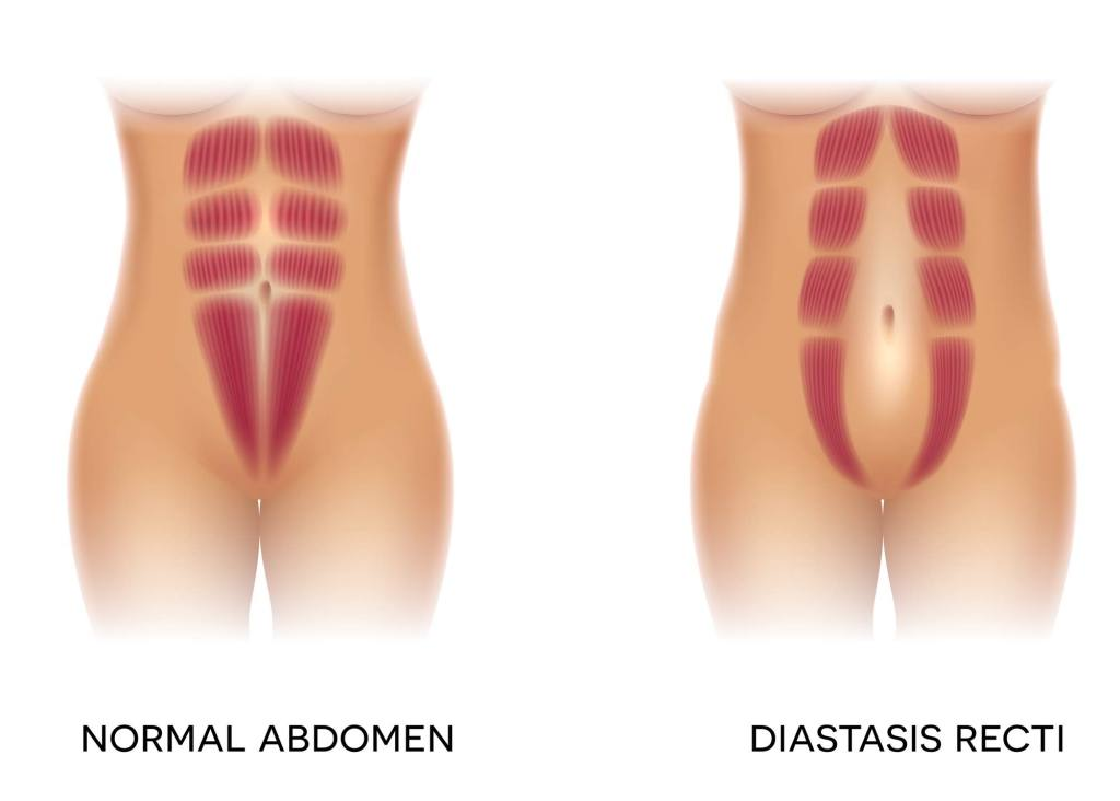 diastasis-recti-causes-mommy-pooch-hurts-postpartum-body-image