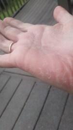 Peeling on palm following rash