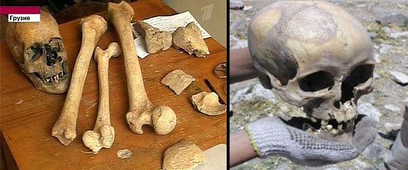https://i1.wp.com/unexplainedmysteriesoftheworld.com/wp-content/uploads/2012/01/Giant-Skeletons.jpg