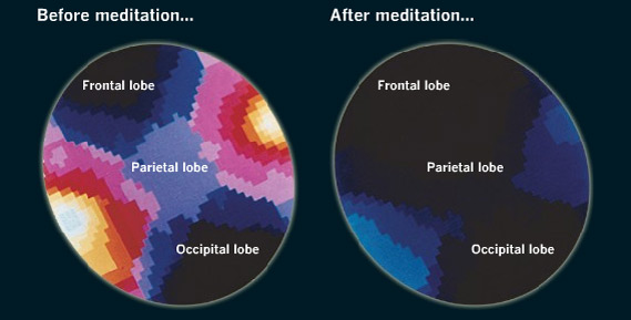 Benefits-of-meditation-1-brain-scans