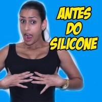 ANTES DO SILICONE - DECISÃO, MÉDICO, VALOR E EXAMES