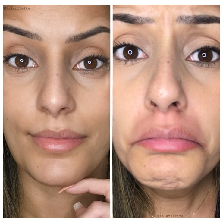 gloss labial, gloss que da volume nos lábios, preenchimento nos lábios, acido hialurônico, bocão em segundos, como ter os lábios grandes em segundos, boa preenchimento, gloss labial phallebeauty, big mouth, big mouth phallebeauty, alergia ao big mouth phallebeauty, gloss que aumenta os lábios deu alergia, alergia a produtos de maquiagem, reação alergica a produtos de maquiagem, unhas da lala, larissa leite, testando produtos, testando maquiagens, testando makes, testando gloss labial