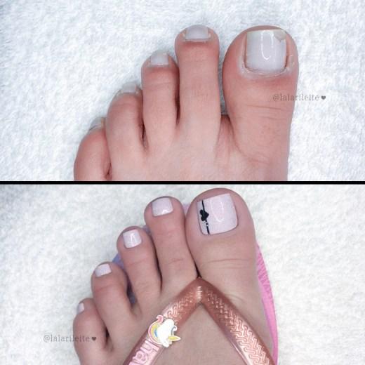 antes e depois unhas dos pés, como fazer as unhas dos pés, como fazer as unhas, como fazer unhas dos pés, como fazer unhas, como tirar cutícula os pés, decoração em casa, unhas dos pés decoradas, nail art nos pés, unhas decoradas, unhas dos pés, pedicure, unhas decoradas passo a passo, unhas decoradas fáceis, nail art, nail art pés, cola na villar, unhas decoradas para os pés, lindas unhas decoradas, fazer unhas, faça você mesmo, cutilagem passo a passo, como fazer as unhas em casa, cutícula unhas pés, cutilagem unhas dos pés, unhas da lala, larissa leite