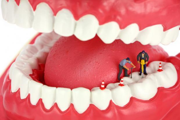 Endodoncia vs Extracción + Implante Dental