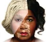 skin bleaching images
