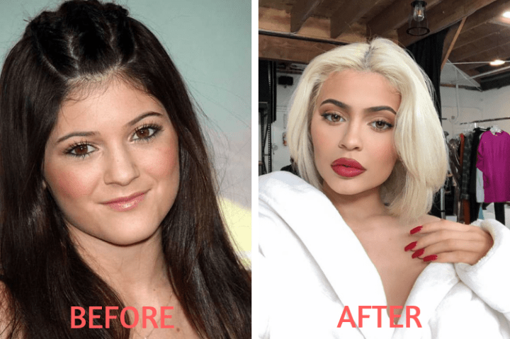 , Celebrity before and after plastic surgery: shock transformations