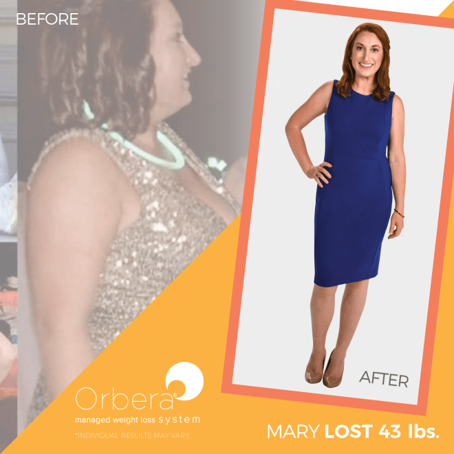 2019-Aug-OBERA-BeforeAfter-1080x1080-FNL-Mary43