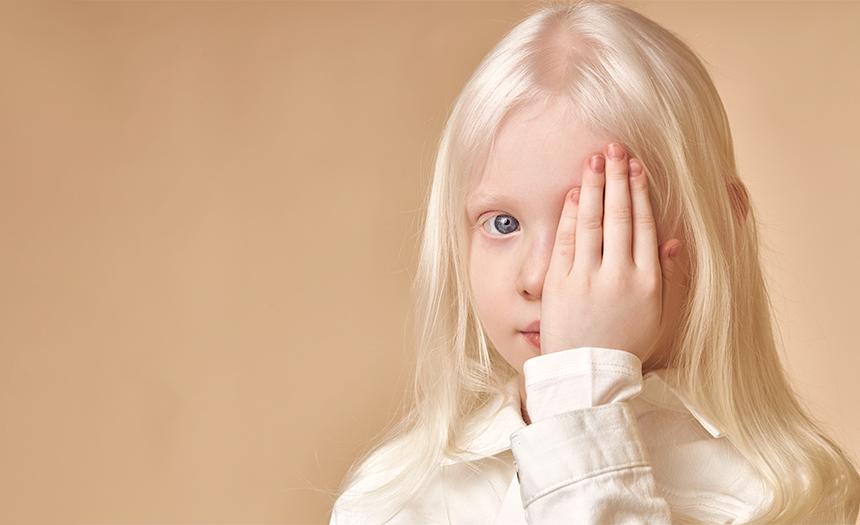 ONU registra 700 ataques a personas con albinismo