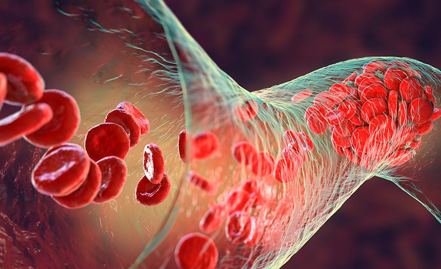 Hipertensión pulmonar: es silenciosa y difícil de encontrar
