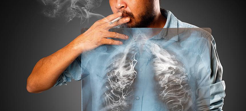 Cada ocho minutos muere una persona por enfermedades vinculadas al tabaco