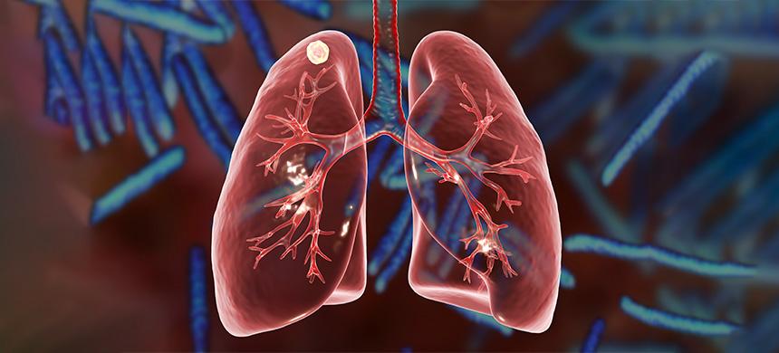 Día Mundial de la Tuberculosis: la COVID-19 no es la enfermedad más mortífera