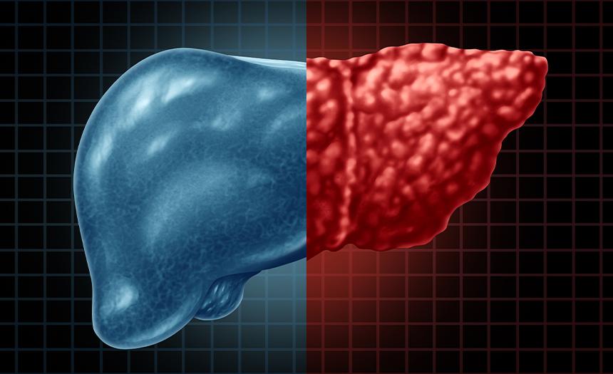 Hígado graso: ¿cómo prevenirlo?