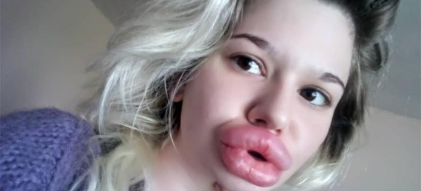 Joven pone su salud en riesgo para tener los labios más grandes del mundo