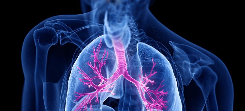 Fibrosis quística: una enfermedad con alta mortalidad