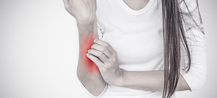 Psoriasis: una crónica inflamación de la piel