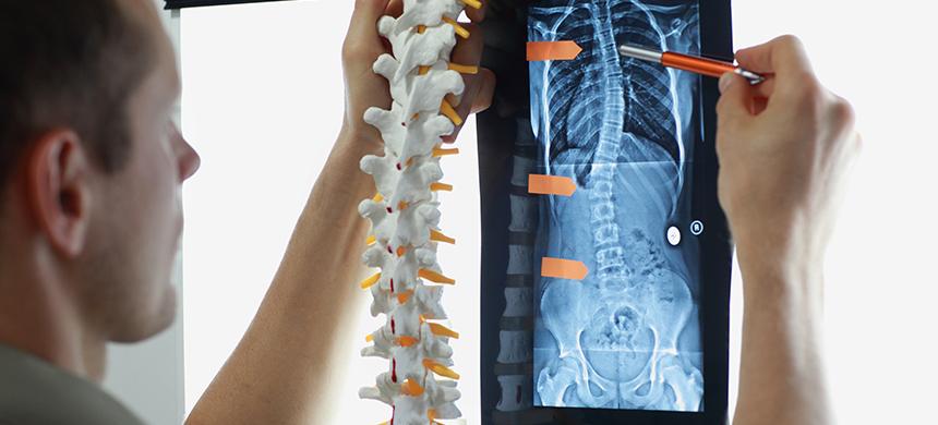 Lesiones de columna: algo más que un padecimiento común