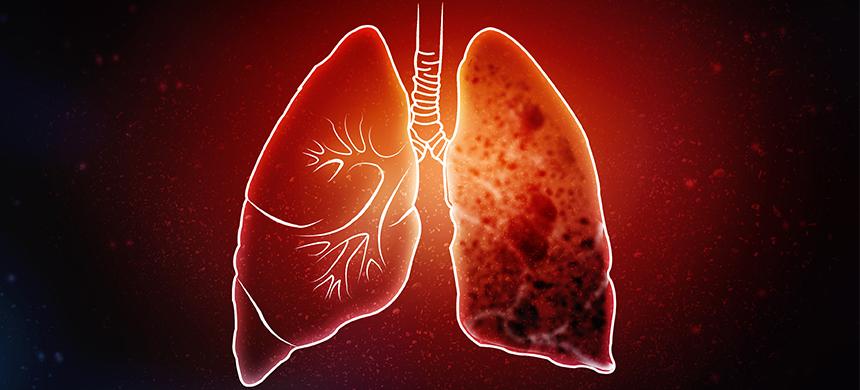 Las otras consecuencias del confinamiento: 1.4 millones más de muertes por tuberculosis hasta 2025