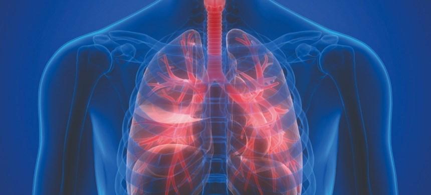 Enfermedades respiratorias: trátalas antes de que sea demasiado tarde