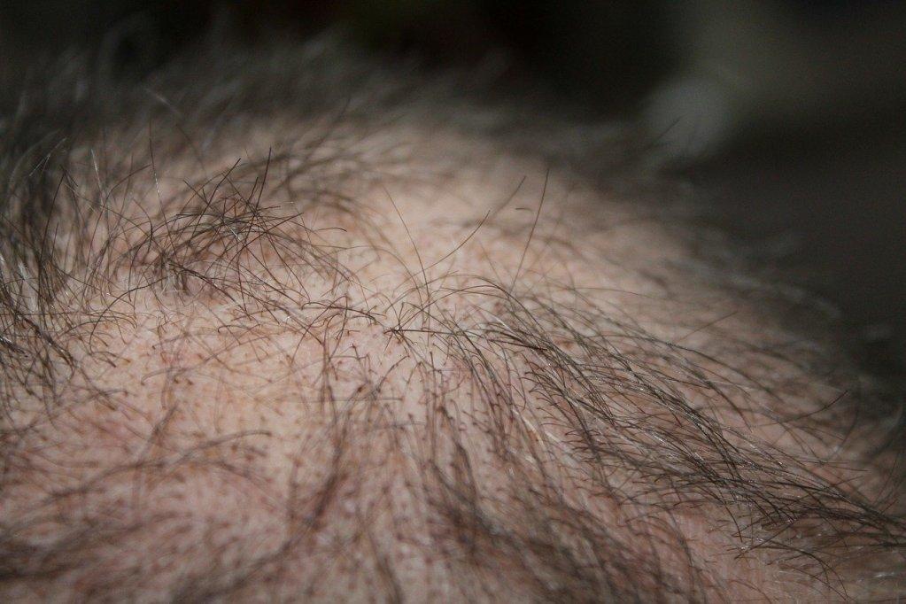 hair, man, hair loss-248048.jpg
