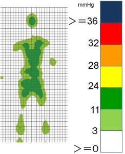 図2 エアマットの体圧特性